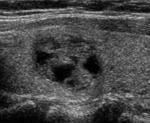 thyroid nodule